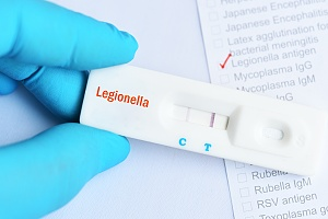 a Legionella test that is required at a water treatment plant