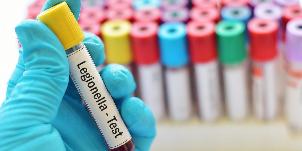 Legionella sample for Lab testing. Legionella Certification is conducted annually